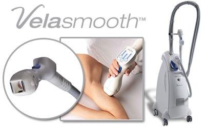 Trattare la cellulite con Velasmooth
