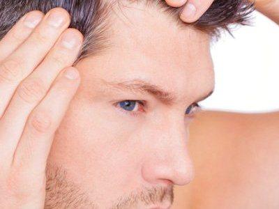 PRP contro la caduta dei capelli